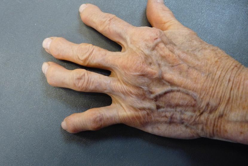 An older human hand